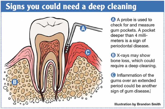 dentaldeepcleangraphic